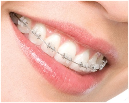 Frequently Asked Orthodontics Questions