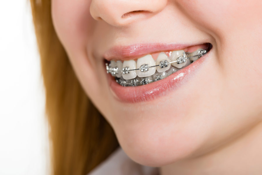 Misconceptions About Getting Braces